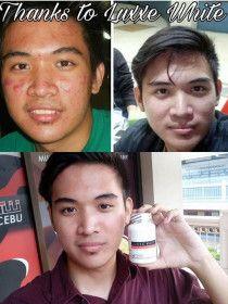 Luxxe White Enhanced Glutathione(Skin Whitening)