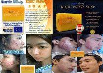 Royale Kojic Papaya Soap   The Best Skin Whitening Kojic Acid Soap