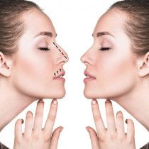 Nose Correction Cosmetic Plastic Surgery in Abu Dhabi Intra Laser Medical Center